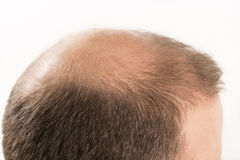Haircare di perdita di capelli dell'uomo di alopecia di calvizile Fotografia Stock Libera da Diritti