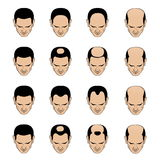Hairl loss patterns and stages for men. Information chart showing types and stages of hair loss for men. Bolding head from full hair cover to a final stage of Stock Images