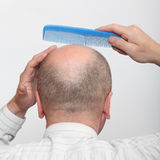 Hairless man. Funny picture of a hairless man with comb Royalty Free Stock Photo