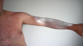 Hairy man apply spray medicine on sun burned tanned skin. Gimbal movement