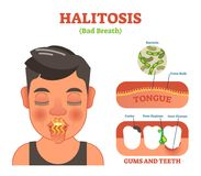 Halitosis. Bad breath vector illustration diagram poster. Halitosis. Bad breath vector illustration diagram poster with persons mouth, tongue and teeth Stock Images