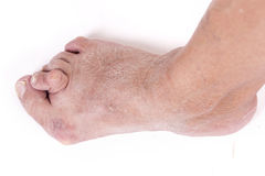 Hallux abductus valgus Stock Images