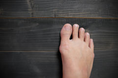 Hallux valgus, bunion in foot stock image
