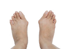 Hallux valgus, bunion in foot. Hallux valgus, bunion in foot on white background Royalty Free Stock Image