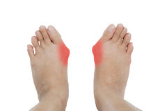 Hallux valgus, bunion in foot Royalty Free Stock Photography