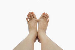 Hallux valgus, bunion in foot. On white background Royalty Free Stock Image