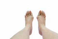 Hallux valgus, bunion in foot. On white background Royalty Free Stock Photos
