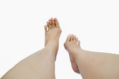 Hallux valgus, bunion in foot Stock Photography