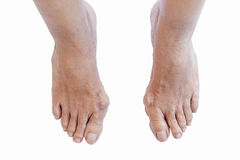 Hallux valgus, bunion in foot on white background Stock Photos