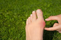 Hallux valgus, bunion in woman foot on grass background. Hallux valgus, bunion in foot on grass background Stock Photo