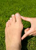 Hallux valgus, bunion in woman foot on grass background. Hallux valgus, bunion in foot on grass background Royalty Free Stock Images