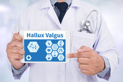 Hallux Valgus. Doctor holding  digital tablet Royalty Free Stock Photo