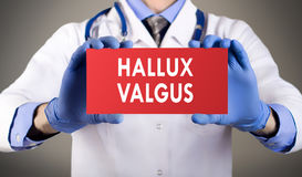 Hallux valgus. Doctor`s hands in blue gloves shows the word hallux valgus. Medical concept Royalty Free Stock Photography