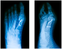 Hallux Valgus surgery Stock Image