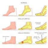 Halluxrigidus vector illustratie