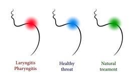 Hals-, Nasen-, Ohrenheilkunde eingestellt mit gesundem und den Halsschmerzen Stockbild