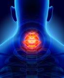 Hals schmerzlich - skeleton Röntgenstrahl cervica Dorns, Illustration 3D Lizenzfreies Stockfoto