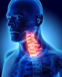 Hals schmerzlich - skeleton Röntgenstrahl cervica Dorns, Illustration 3D Stockbilder