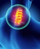 Hals schmerzlich - skeleton Röntgenstrahl cervica Dorns, Illustration 3D Lizenzfreie Stockfotos