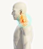 Hals schmerzlich - skeleton Röntgenstrahl cervica Dorns, Illustration 3D Stockbild