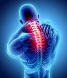 Hals schmerzlich - skeleton Röntgenstrahl des zervikalen Dorns, Illustration 3D Stockfoto
