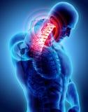 Hals schmerzlich - skeleton Röntgenstrahl des zervikalen Dorns, Illustration 3D Lizenzfreie Stockbilder