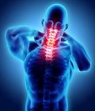 Hals schmerzlich - skeleton Röntgenstrahl des zervikalen Dorns, Illustration 3D Stockbilder