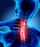 Hals schmerzlich - skeleton Röntgenstrahl des zervikalen Dorns, Illustration 3D Lizenzfreie Stockfotografie