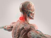 Halsen för anatomimodellvisningen smärtar Royaltyfri Foto