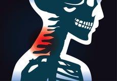 Halsknochen haben Schmerzsymptom lizenzfreie abbildung