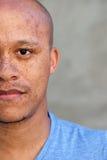 Halv framsidaafrikansk amerikanman med fräknar royaltyfri foto