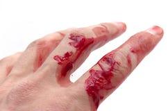Hand & bloed Stock Foto's