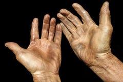 Hand av gamala mannen Arkivbild