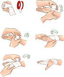 Hand bandage. Vector color illustration of hand bandage Royalty Free Stock Images