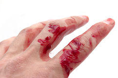 Hand & blood stock photos