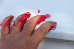 Hand with blood pouring Stock Photos
