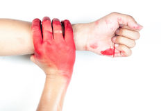 Hand in blood on a white background Stock Photos