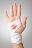 Hand with bloody bandage Royalty Free Stock Images
