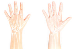 Hand bone pain Royalty Free Stock Photography