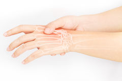 Hand bone pain. White background royalty free stock photography