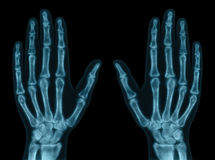 Hand Bones. X-ray of both hands. Concept of exam royalty free stock photo
