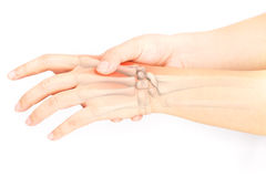 Hand bones injury. White background stock images