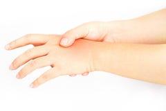 Hand bones injury. White background stock photo