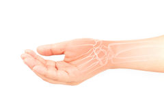 Hand bones injury stock image