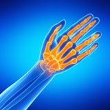 The hand bones Stock Photography