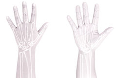 Hand bones. Pain white background Royalty Free Stock Photography