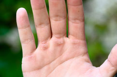 Hand with callus. Man showing his hand with callus royalty free stock photo