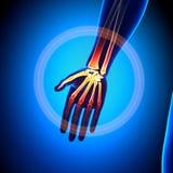 Hand/Carpals/Metacarpals/Phalanges - Anatomiebeenderen vector illustratie