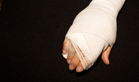 Hand in a cast. Hand in a cast after hand surgery Royalty Free Stock Photos