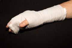 Hand in a cast. Hand in a cast after hand surgery Stock Photo